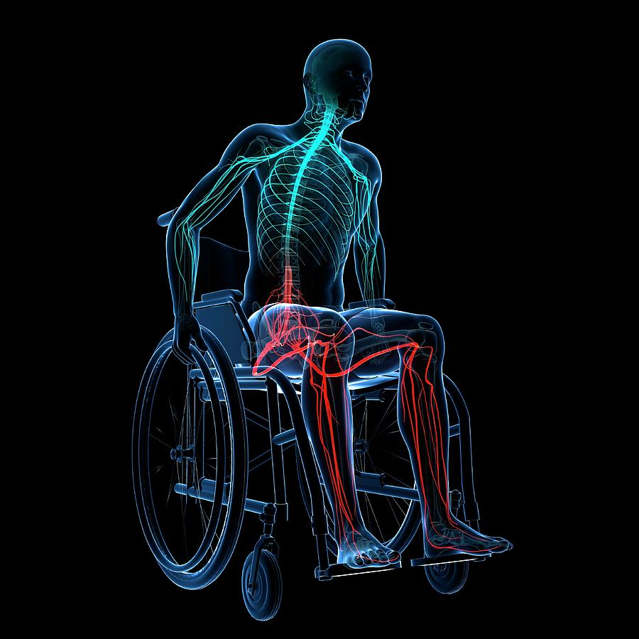 Artwork Photograph - Man In A Wheelchair by Sciepro/science Photo Library