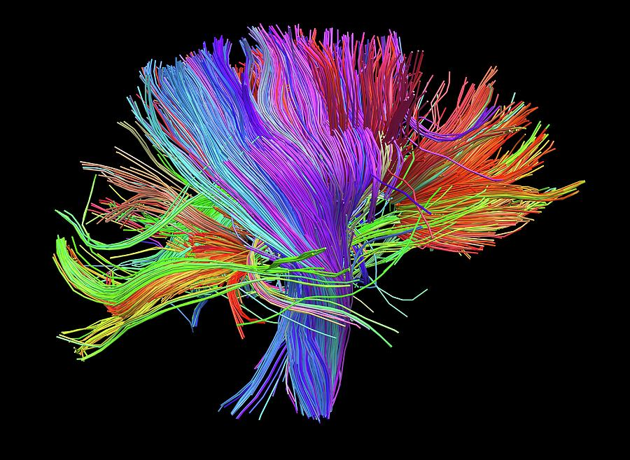 Brain Scan Photograph - White Matter Fibres Of The Human Brain by Alfred Pasieka