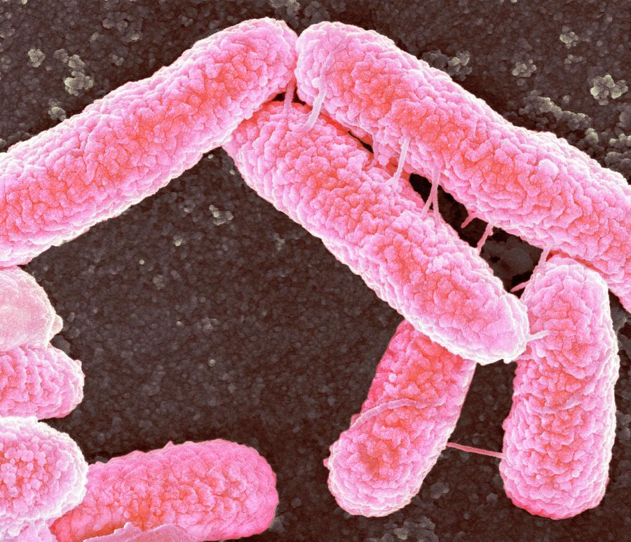 Escherichia Coli Photograph - E Coli Bacteria by Science Photo Library