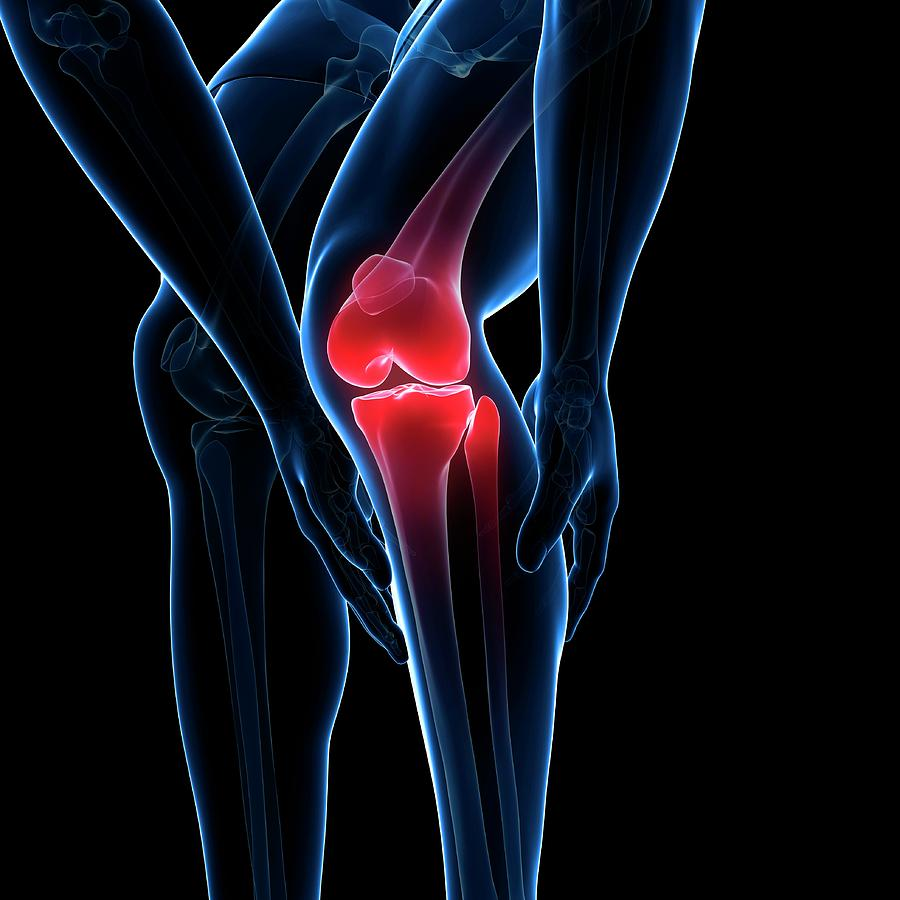 Artwork Photograph - Painful Knee by Sciepro/science Photo Library