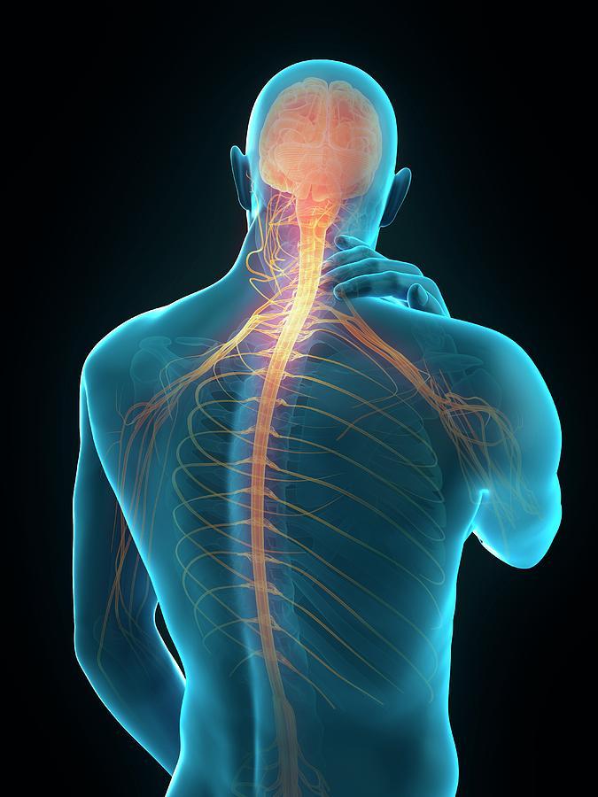 Artwork Photograph - Human Neck Pain by Sebastian Kaulitzki/science Photo Library