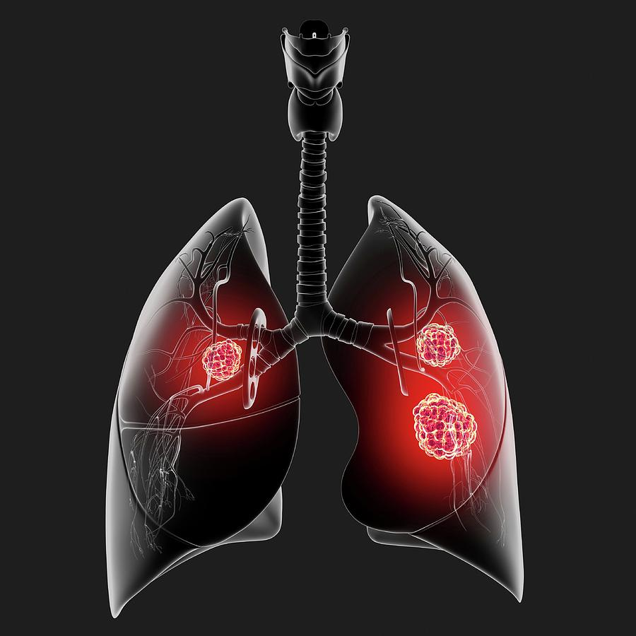 Artwork Photograph - Lung Cancer by Pixologicstudio/science Photo Library