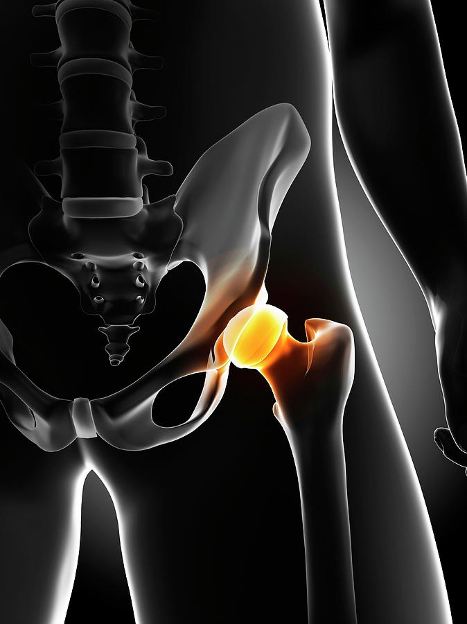 Male Photograph - Hip Pain by Sciepro/science Photo Library