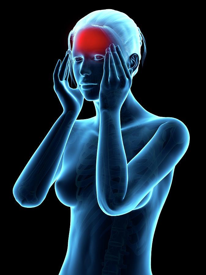 Artwork Photograph - Human Headache by Sebastian Kaulitzki