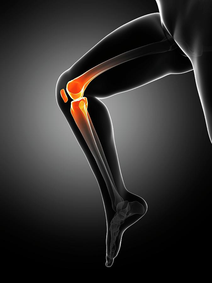 Abnormal Photograph - Knee Pain by Sciepro/science Photo Library