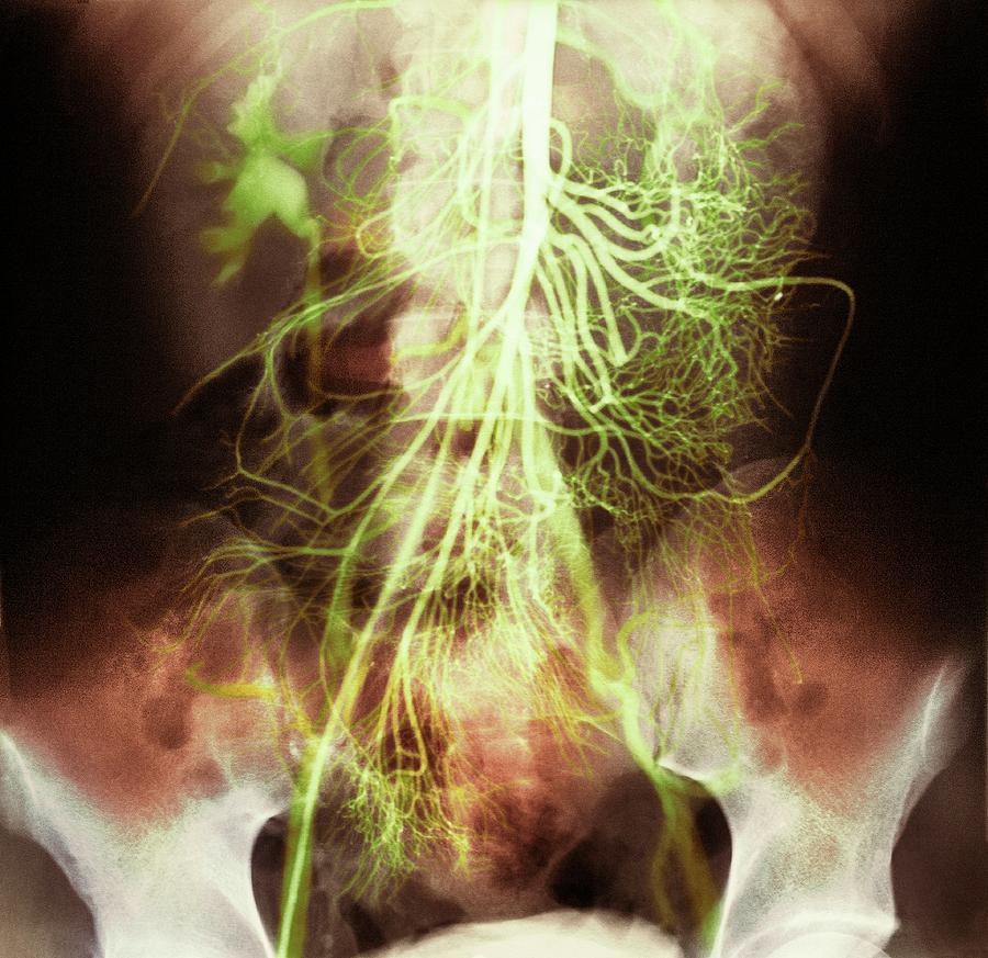 Abdominal Arteries Photograph By Medimagescience Photo Library