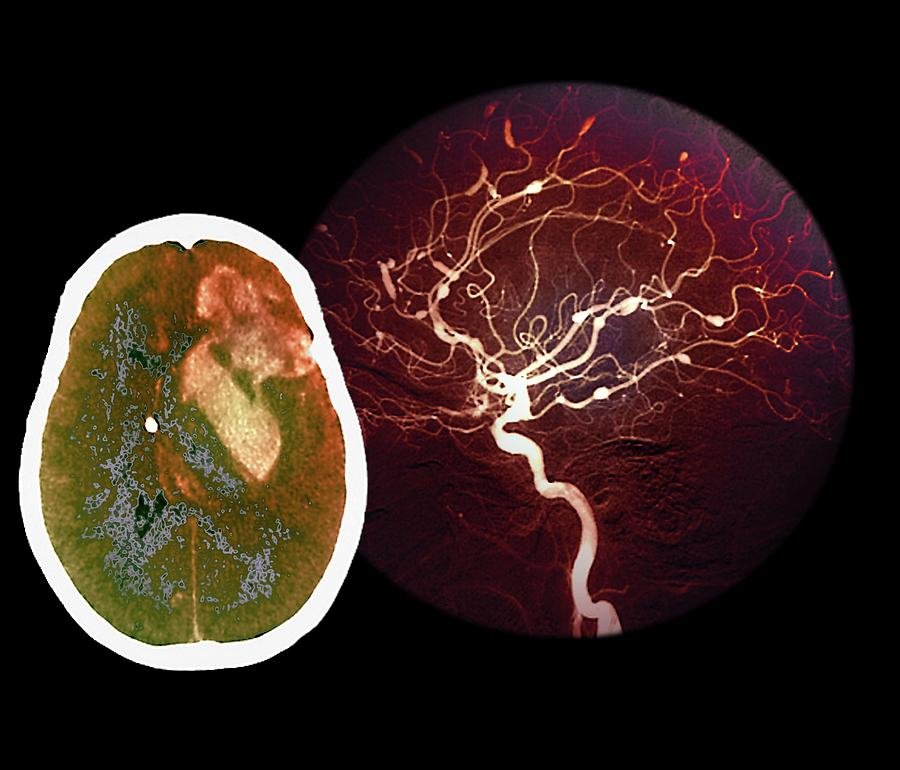 Colour Photograph - Brain Haemorrhage From Aneurysm by Zephyr/science Photo Library