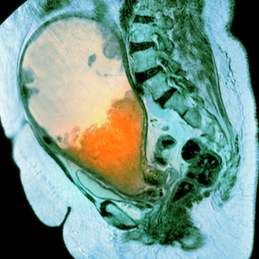 Disease Photograph - Cancer Of The Uterus by Du Cane Medical Imaging Ltd/science Photo Library