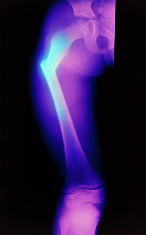Femur Photograph - Coloured X-ray Image Of A Childs Broken Femur by Science Photo Library