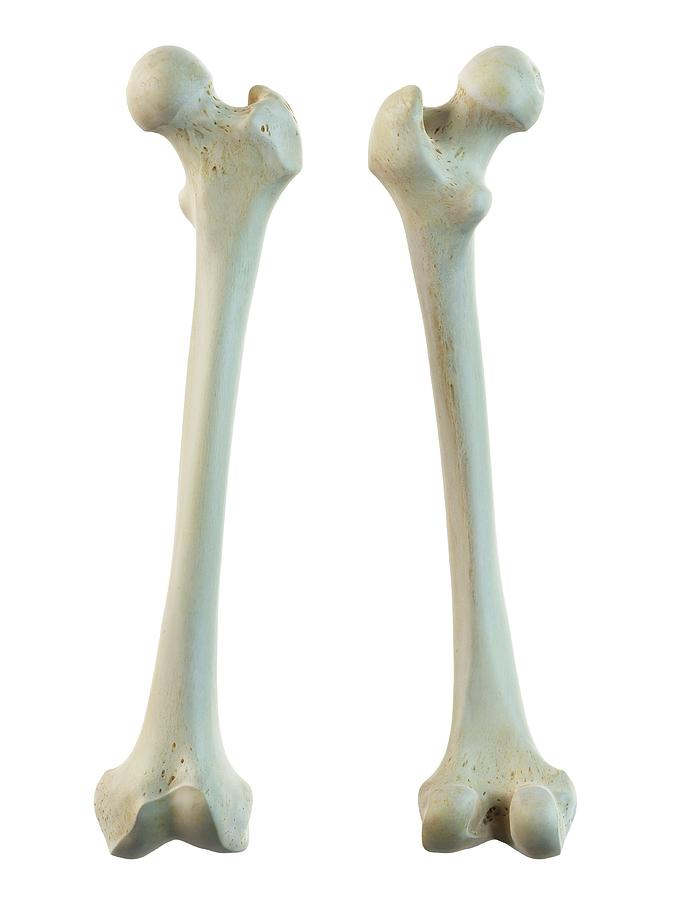 Human Femur Photograph By Sciepro