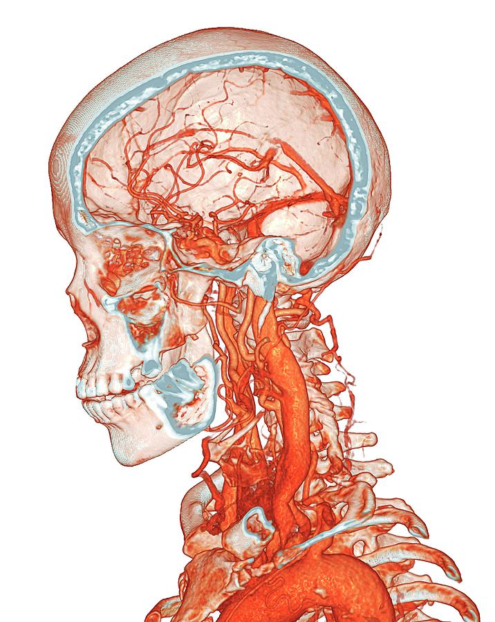 Artery Photograph - Intracranial And Neck Blood Vessels by K H Fung/science Photo Library