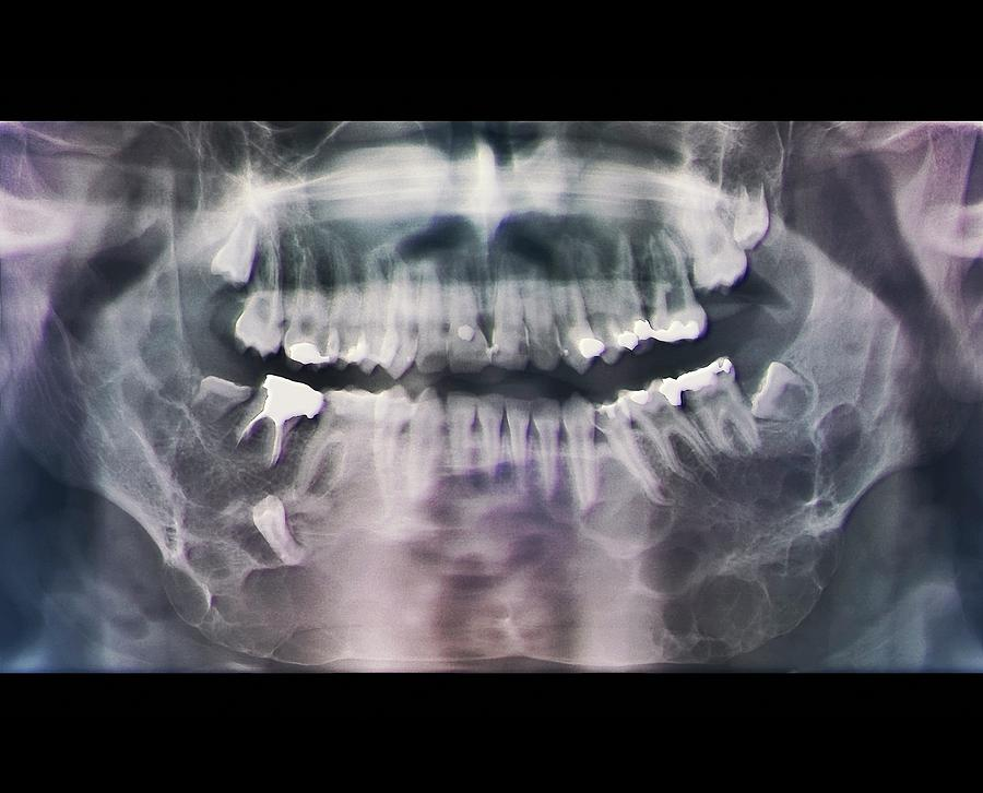 Coloured Photograph - Jaw Cancer (ameloblastoma) by Zephyr/science Photo Library
