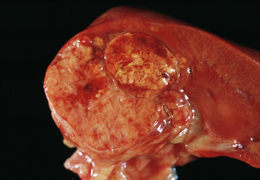 Kidney Photograph - Kidney Cancer by Cnri/science Photo Library