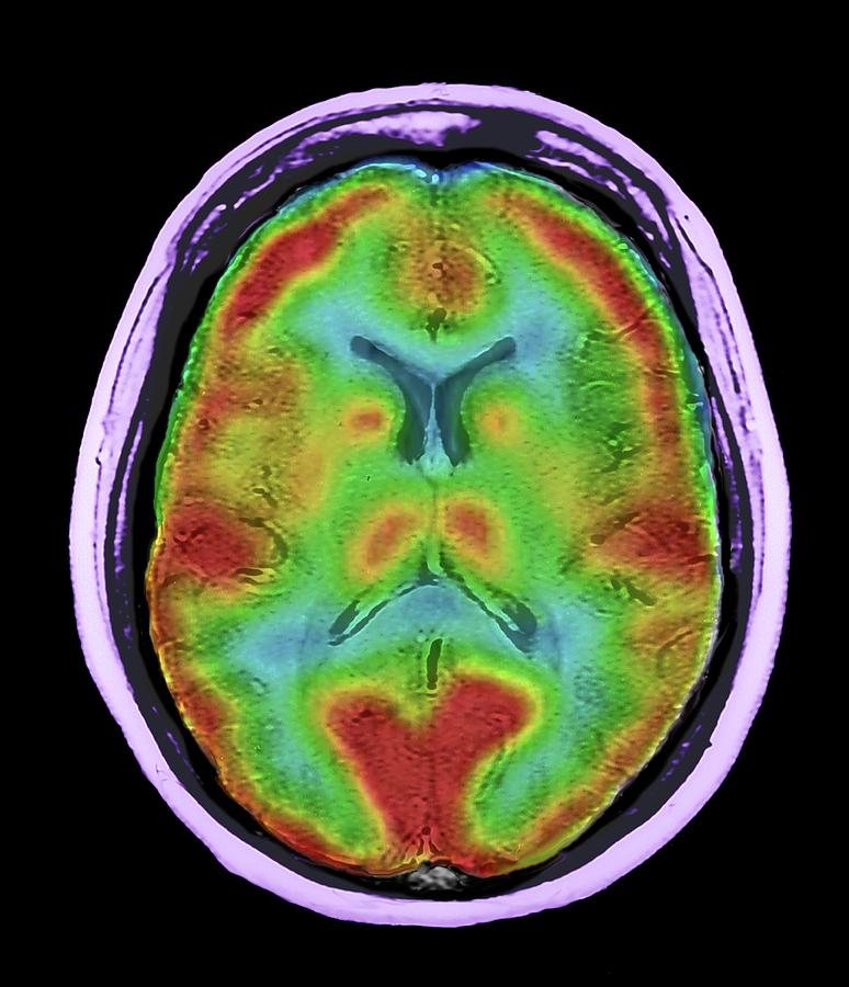 Coloured Photograph - Normal Brain Blood Flow by Zephyr