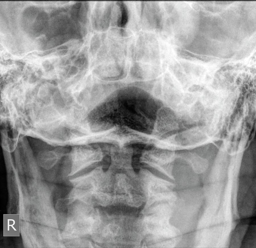 Normal Cervical Spine X-ray Photograph by Photostock-israel