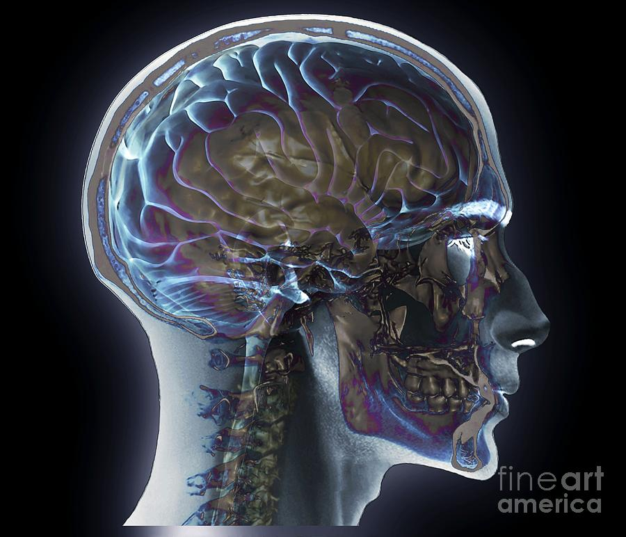 Normal Head And Neck, Mri And 3d Ct Scans Photograph by Zephyr