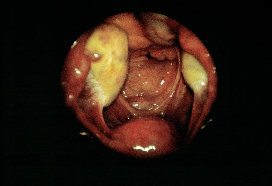 Ovarian Cyst Photograph by Cnri/science Photo Library