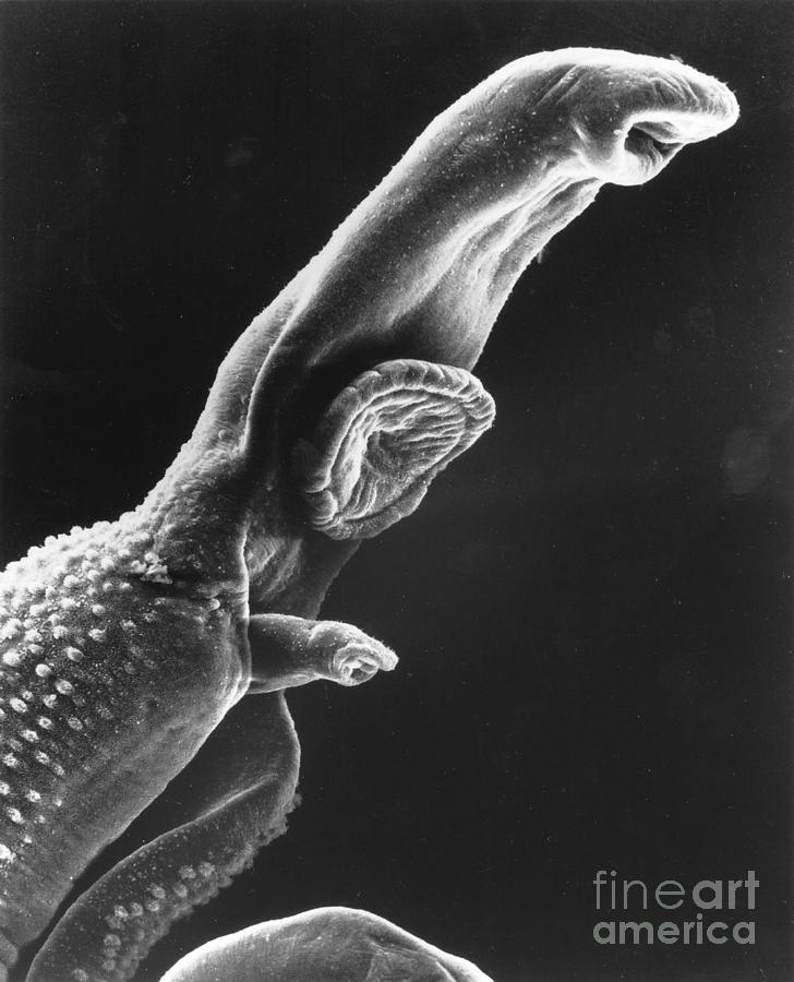 Scanning Electron Micrograph Photograph
