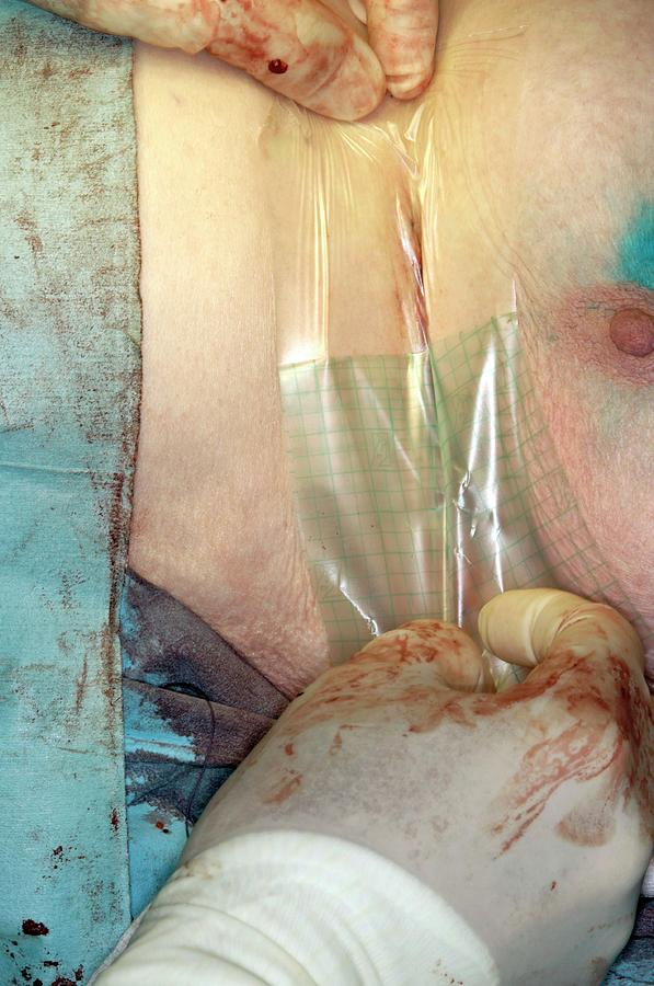 Equipment Photograph - Breast Cancer Surgery by Dr P. Marazzi/science Photo Library