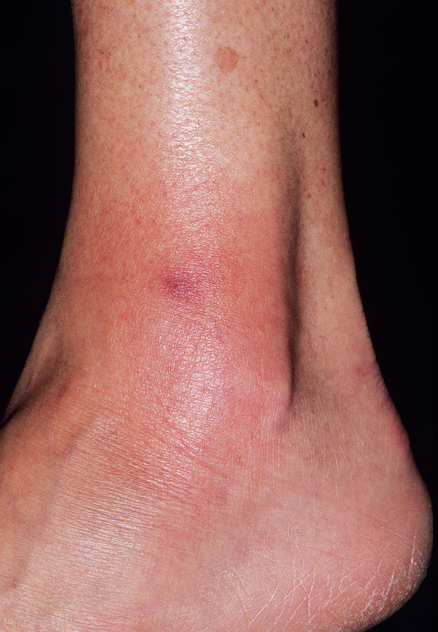 Leg Photograph - Cellulitis by Dr P. Marazzi/science Photo Library