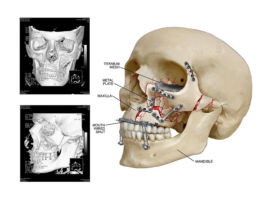 Facial Skull Fractures Fixation Photograph by John T. Alesi