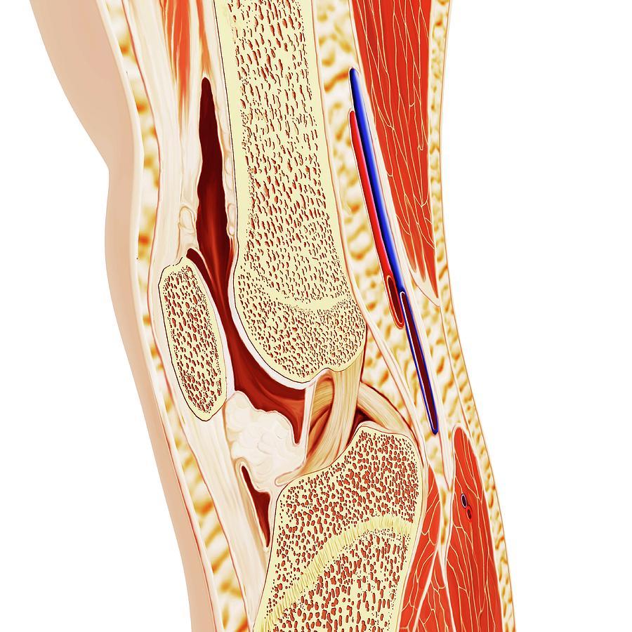 Human Knee Anatomy Photograph By Pixologicstudioscience Photo Library
