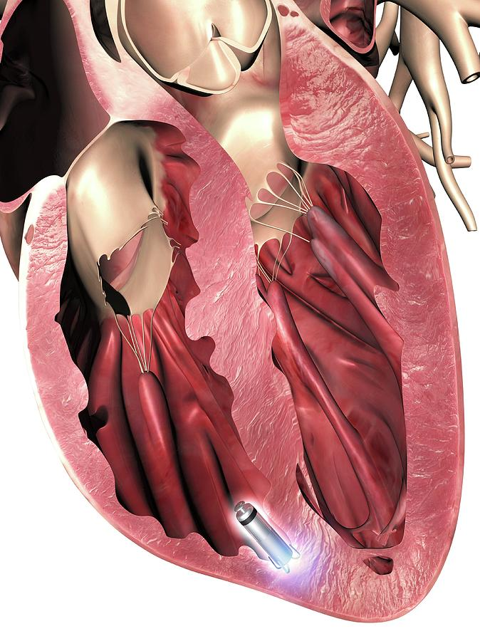 Leadless Pacemaker In Anterior Heart Photograph by Alfred ...