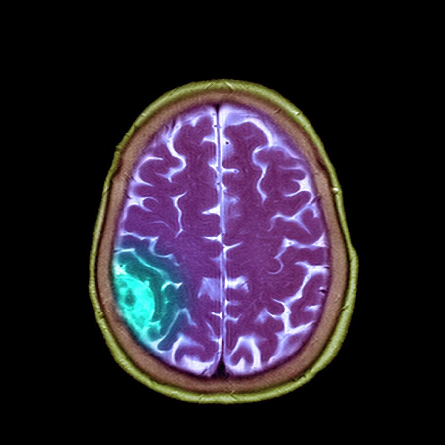 Brain Photograph - Meningioma Tumour by Simon Fraser/science Photo Library
