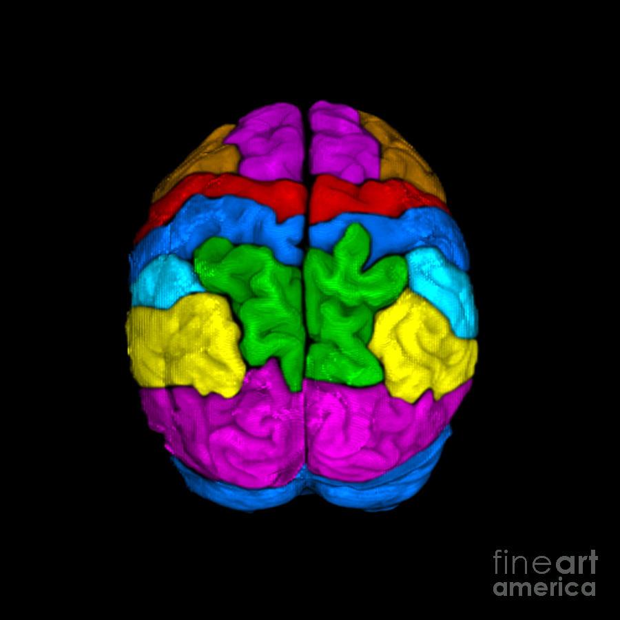 Mri Of Normal Brain Photograph by Living Art Enterprises