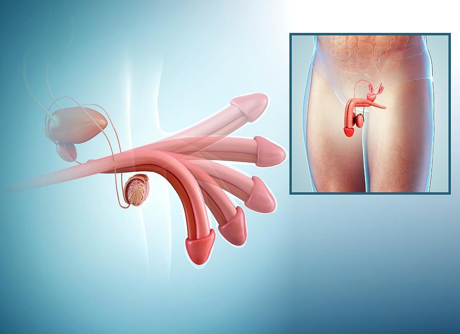 Penis Erection Photograph by Pixologicstudio/science Photo