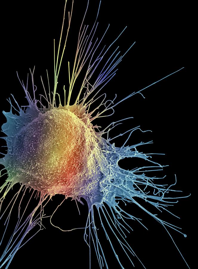 Abnormal Photograph - Prostate Cancer Cell by Steve Gschmeissner