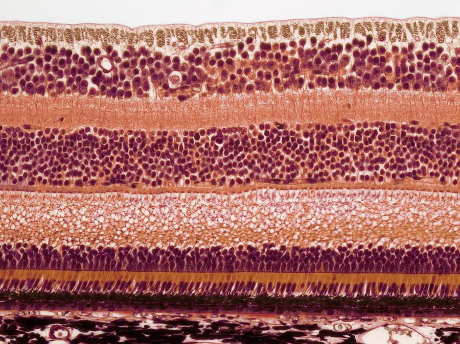 Anatomical Photograph - Retina by Steve Gschmeissner