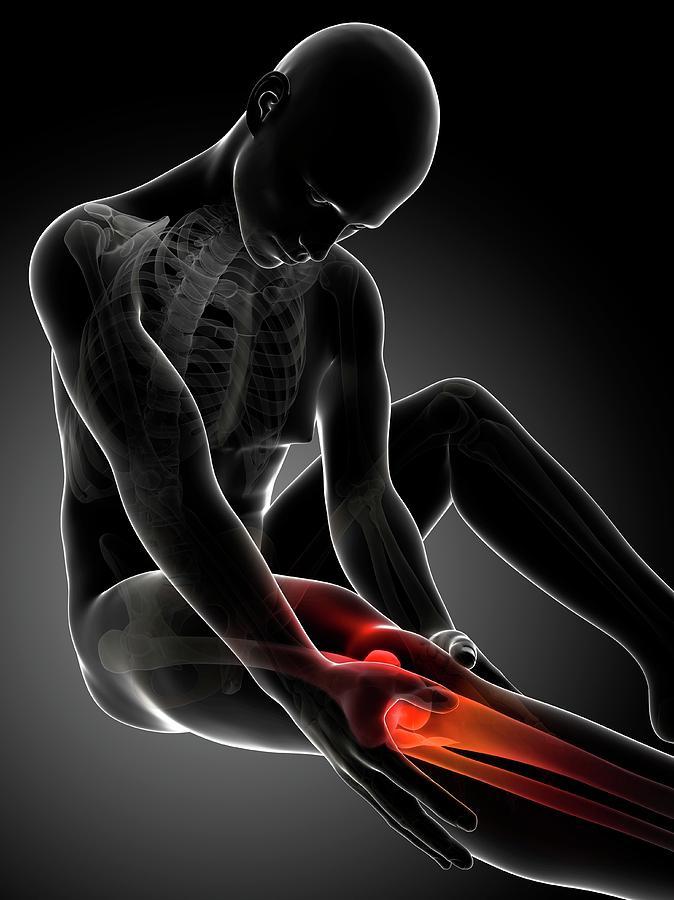Artwork Photograph - Human Knee Pain by Sebastian Kaulitzki