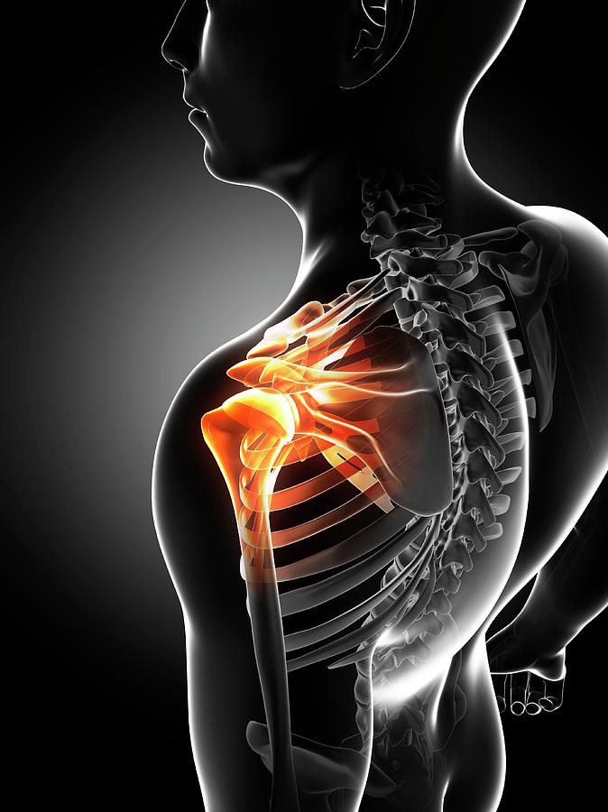 Male Photograph - Shoulder Pain by Sciepro/science Photo Library