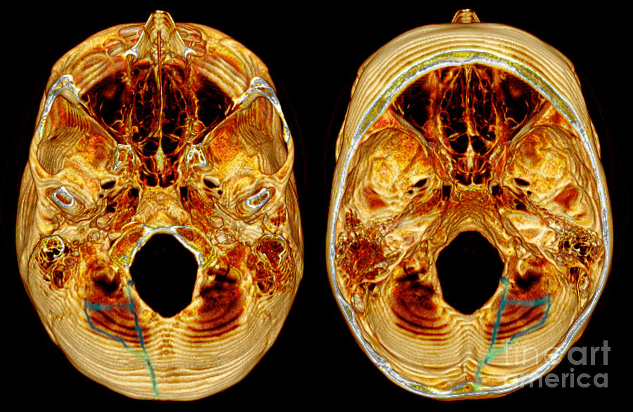 Fracture Photograph - 3d Ct Reconstruction Of Skull Fracture by Scott Camazine