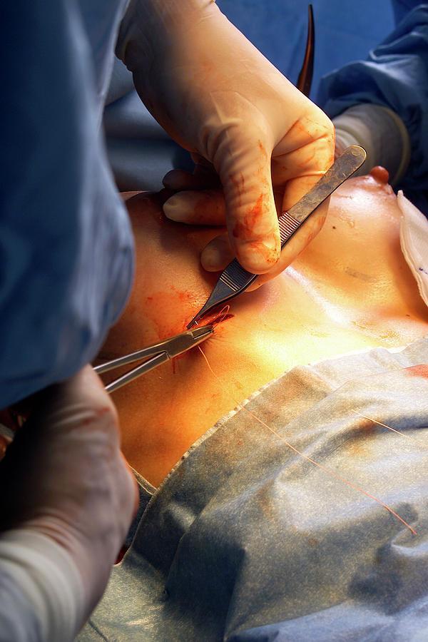 Plastic surgery virginia beach