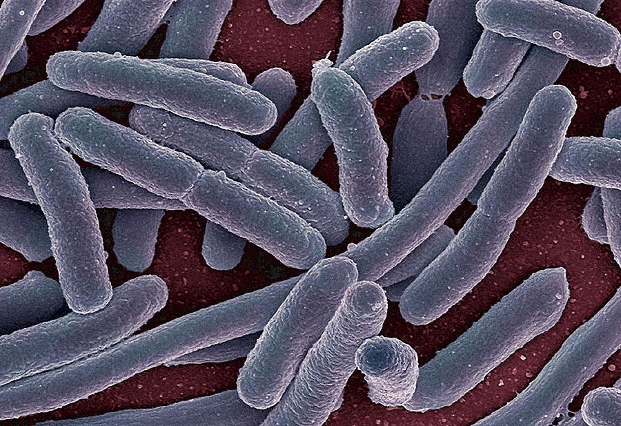 Escherichia Coli Photograph - E Coli Bacteria Sem by Ami Images