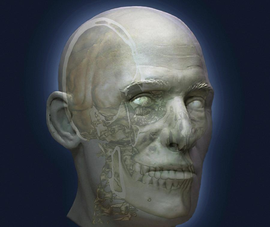 Human Photograph - Human Head by Zephyr