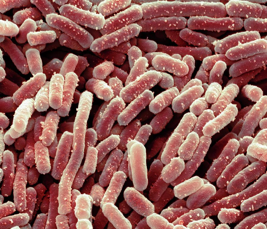 Bacteria Photograph - Lactobacillus Bacteria by Steve Gschmeissner