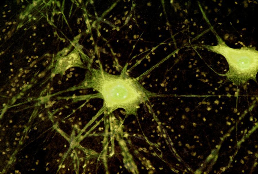 Multipolar Neuron Photograph - Nerve Cells Light Micrograph by Steve Gschmeissner