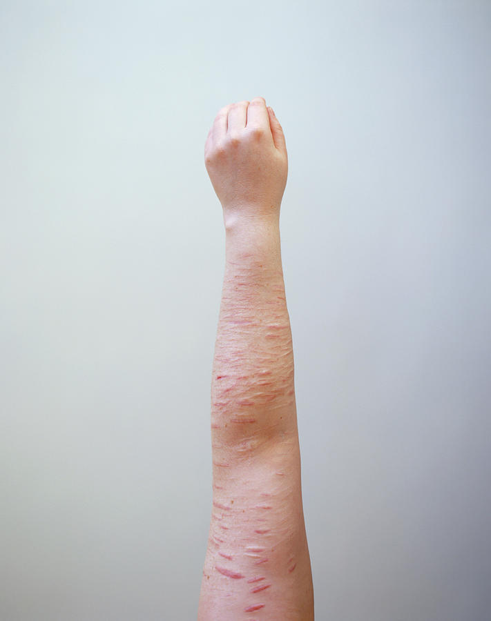 Scar Photograph - Scarring Caused By Self Harm by Joti/science Photo Library
