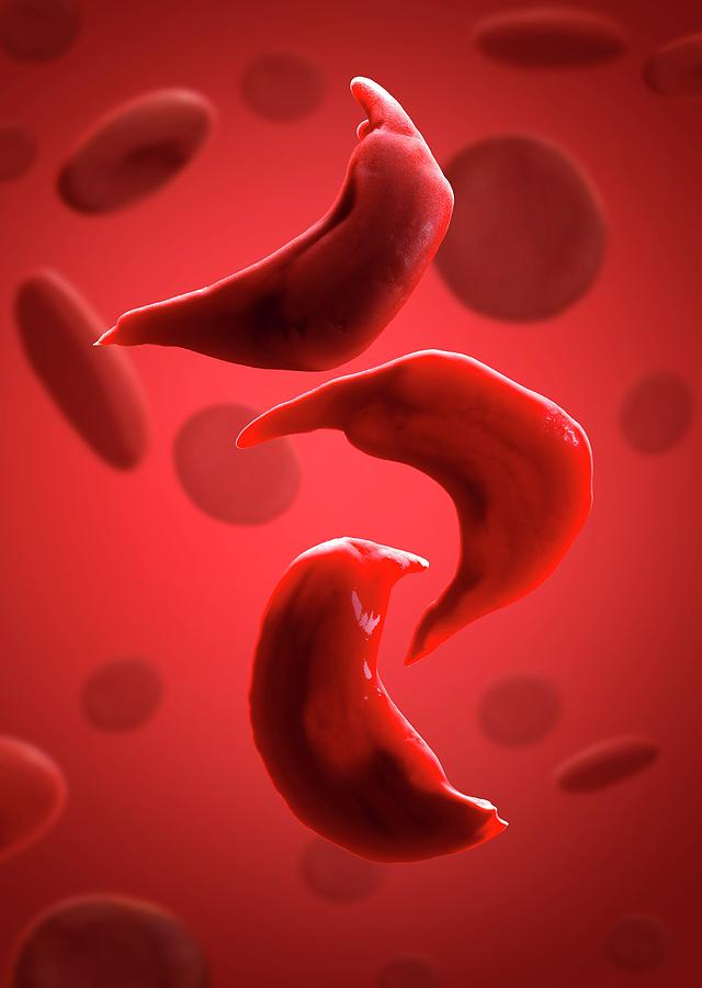 Human Photograph - Sickle Cell Anaemia by Tim Vernon