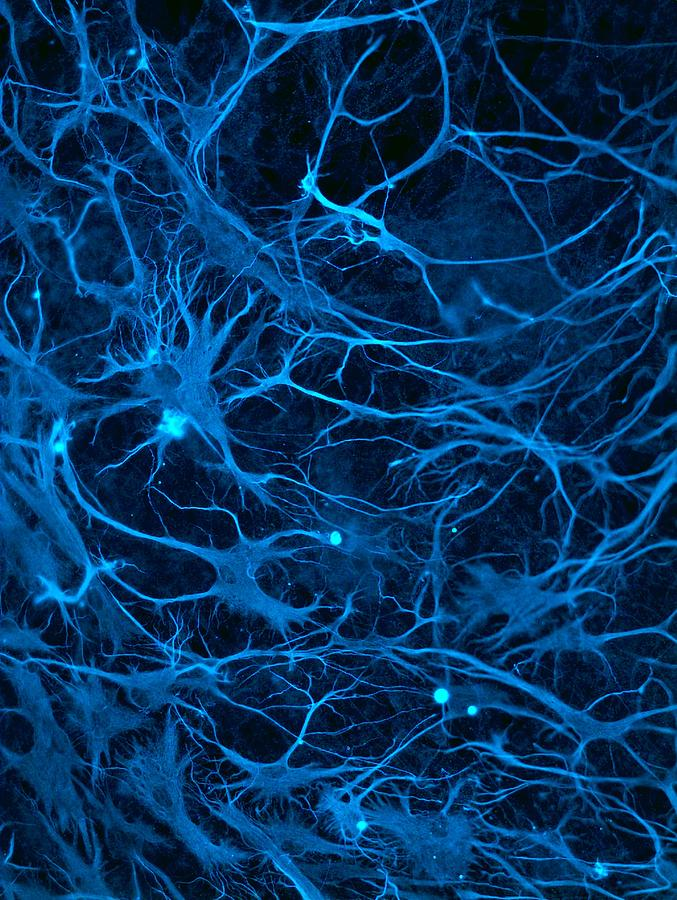 Biological Photograph - Stem cell-derived nerve cells by Science Photo Library