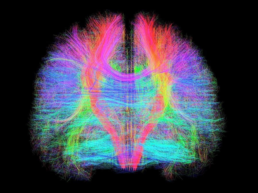 Brain Scan Photograph - White Matter Fibres Of The Human Brain by Alfred Pasieka/science Photo Library
