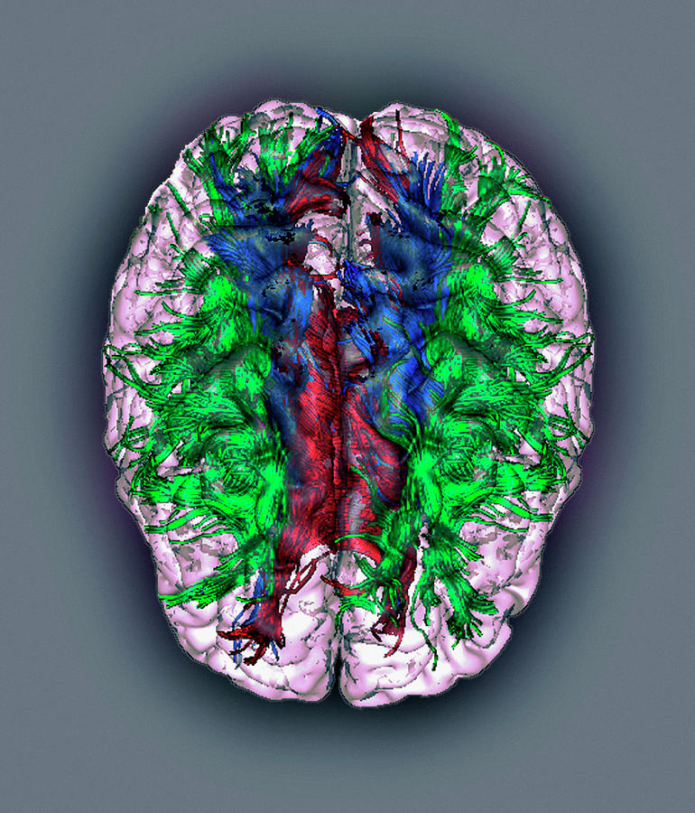 Human Body Photograph - White Matter Fibres by Zephyr/science Photo Library