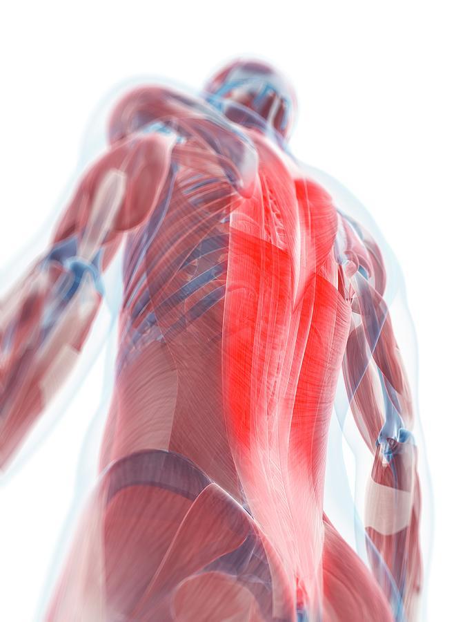 Back Pain, Conceptual Artwork Digital Art by Sciepro
