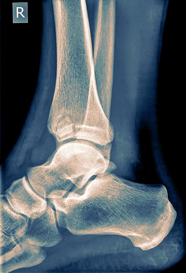Anatomy Photograph - Ankle X-ray by Photostock-israel