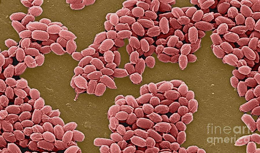 Science Photograph - Anthrax Bacteria Sem by Science Source