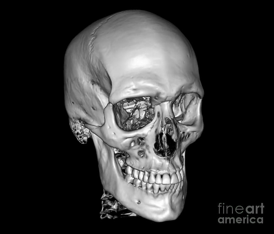 Normal Skull, 3d Ct Scan Photograph by Zephyr X Ray Human Skull