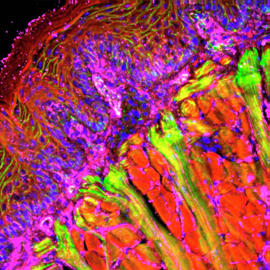 Tissue Photograph - Tongue Tissue by R. Bick, B. Poindexter, Ut Medical School